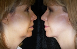 Case-1-Mini-Cheek-Neck-Face-Lift-lat-propo-llebpmac